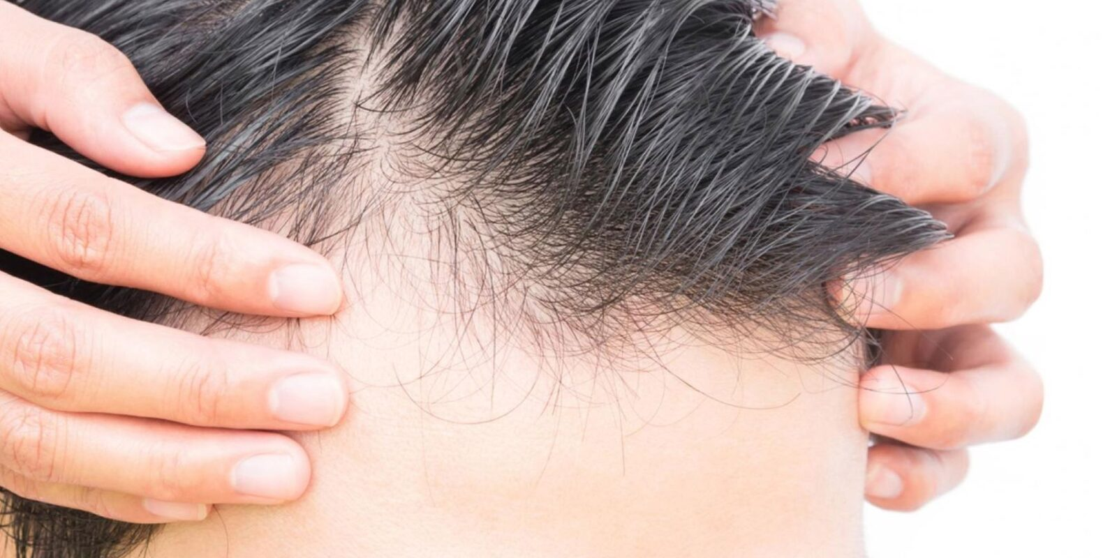 hair loss scalp picture