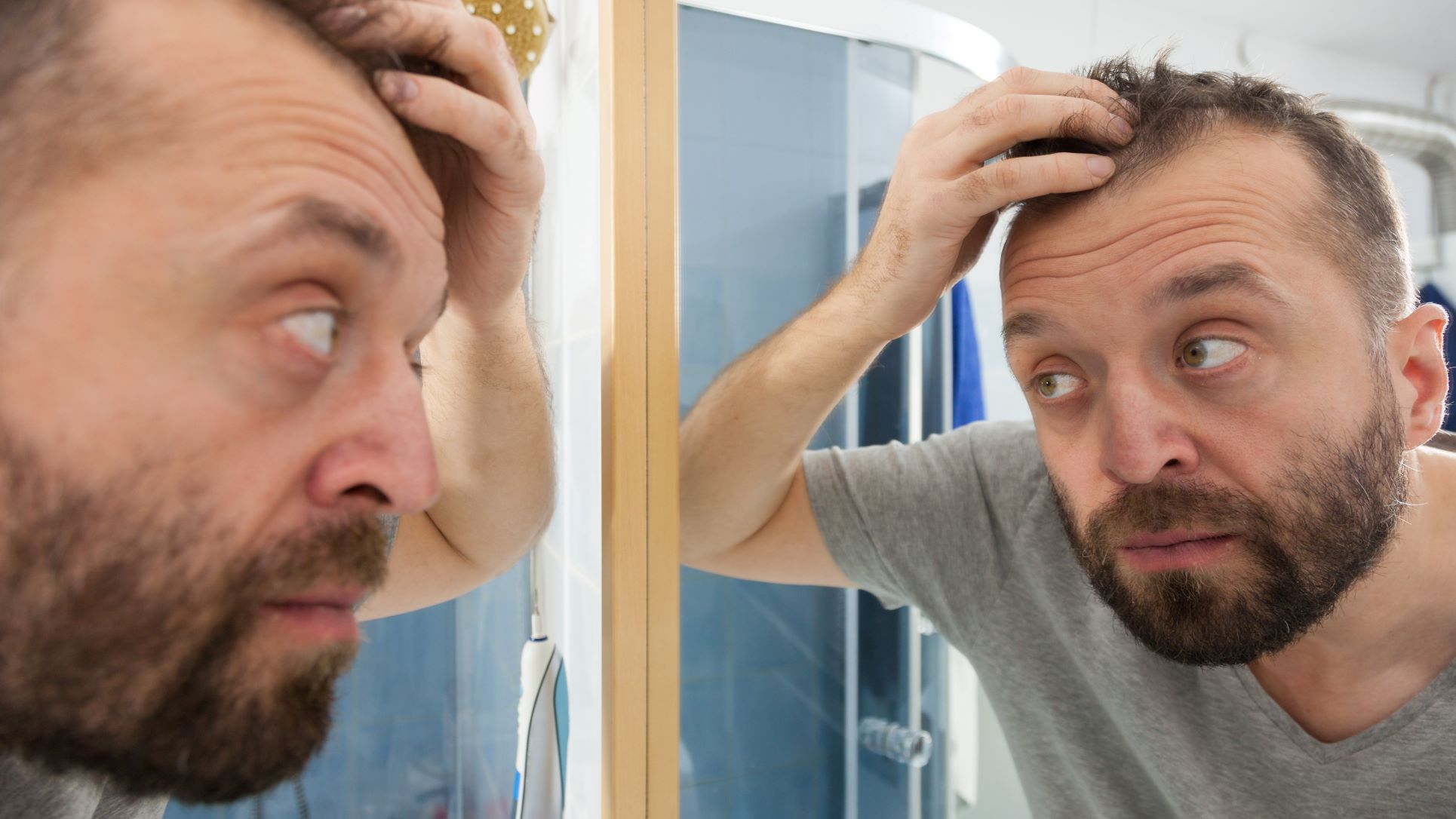 mature hairline m hairline guy looking at mirror