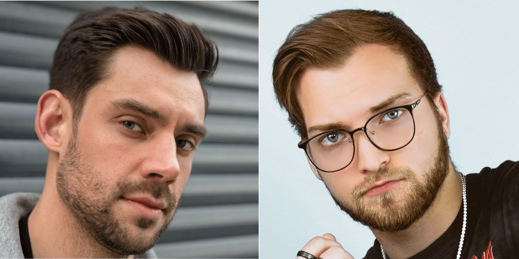 widow's peak vs receding hairline comparison